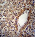 ACSS2 Antibody immunohistochemistry of formalin-fixed and paraffin-embedded human liver tissue followed by peroxidase-conjugated secondary antibody and DAB staining.