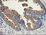 IHC of paraffin-embedded Human prostate tissue using anti-ACSS2 mouse monoclonal antibody. (Heat-induced epitope retrieval by 10mM citric buffer, pH6.0, 100C for 10min).