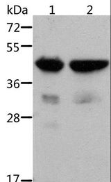 ACTA1 / Skeletal Muscle Actin Antibody - Western blot analysis of Mouse muscle and heart tissue, using ACTA1 Polyclonal Antibody at dilution of 1:500.