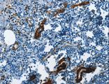 Immunohistochemistry of paraffin-embedded Human tonsil using ACTA2 Polyclonal Antibody at dilution of 1:30.