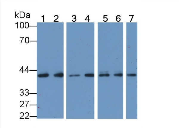 ACTC1 / Alpha Cardiac Actin Antibody - Western Blot; Sample: Recombinant ACTC1, Human.
