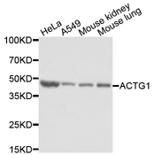 ACTG1 / Gamma Actin Antibody - Western blot analysis of extracts of various cell lines.