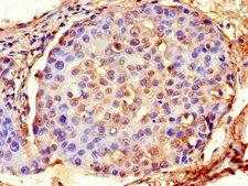 ACTG1 / Gamma Actin Antibody - Immunohistochemistry of paraffin-embedded human breast cancer using ACTG1 Antibody at dilution of 1:100