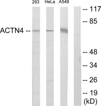 ACTN1+2+3+4 Antibody - Western blot analysis of lysates from 293, HeLa, and A549 cells, using ACTN1/2/3/4 Antibody. The lane on the right is blocked with the synthesized peptide.