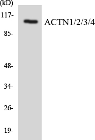 ACTN1+2+3+4 Antibody - Western blot analysis of the lysates from COLO205 cells using ACTN1/2/3/4 antibody.