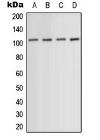 ACTN1+2+3+4 Antibody - Western blot analysis of ACTN1/2/3/4 expression in HeLa (A); HUVEC (B); mouse muscle (C); PC12 (D) whole cell lysates.