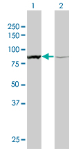 ACTN1 Antibody - Western Blot analysis of ACTN1 expression in transfected 293T cell line by ACTN1 monoclonal antibody (M01), clone 3F1.Lane 1: ACTN1 transfected lysate(103.1 KDa).Lane 2: Non-transfected lysate.