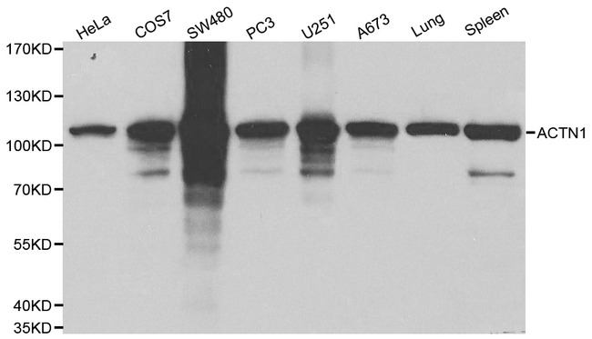 ACTN1 Antibody - Western blot of ACTN1 pAb in extracts from Hela, COS7, SW480, PC3, U251, A673 cells and mouse lung, spleen tissues.