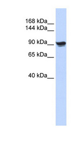 ACTN1 Antibody - ACTN1 / ASMA antibody Western blot of 293T cell lysate. This image was taken for the unconjugated form of this product. Other forms have not been tested.