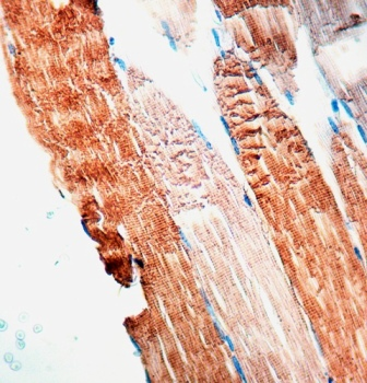 Formalin-fixed, paraffin-embedded human skeletal muscle stained with Actin, Sarcomeric antibody.