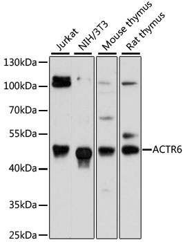 Western blot analysis of extracts of various cell lines, using ACTR6 antibody at 1:3000 dilution. The secondary antibody used was an HRP Goat Anti-Rabbit IgG (H+L) at 1:10000 dilution. Lysates were loaded 25ug per lane and 3% nonfat dry milk in TBST was used for blocking. An ECL Kit was used for detection and the exposure time was 90s.