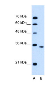ACTRIIB / ACVR2B Antibody - ACVR2B antibody ARP45043_P050-AAH96245-ACVR2B(activin A receptor, type IIB) Antibody Western blot of HepG2 cell lysate.  This image was taken for the unconjugated form of this product. Other forms have not been tested.