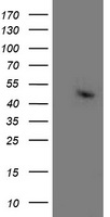 HEK293T cells were transfected with the pCMV6-ENTRY control (Left lane) or pCMV6-ENTRY ACY1 (Right lane) cDNA for 48 hrs and lysed. Equivalent amounts of cell lysates (5 ug per lane) were separated by SDS-PAGE and immunoblotted with anti-ACY1.