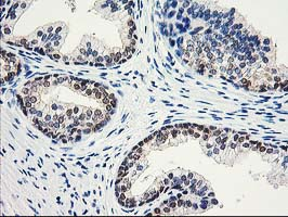 IHC of paraffin-embedded Human prostate tissue using anti-ACY1 mouse monoclonal antibody.