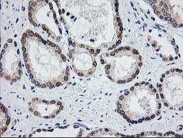 IHC of paraffin-embedded Carcinoma of Human prostate tissue using anti-ACY1 mouse monoclonal antibody.
