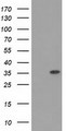 HEK293T cells were transfected with the pCMV6-ENTRY control (Left lane) or pCMV6-ENTRY ACY3 (Right lane) cDNA for 48 hrs and lysed. Equivalent amounts of cell lysates (5 ug per lane) were separated by SDS-PAGE and immunoblotted with anti-ACY3.