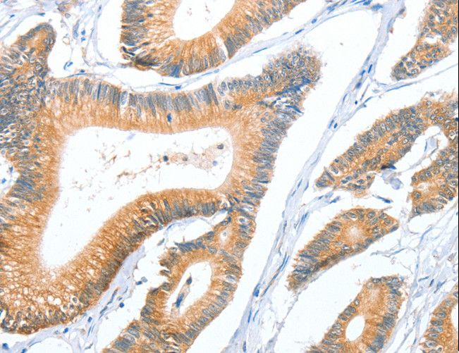 ACY3 Antibody - Immunohistochemistry of paraffin-embedded Human colon cancer using ACY3 Polyclonal Antibody at dilution of 1:35.