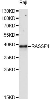 AD037 / RASSF4 Antibody - Western blot analysis of extracts of Raji cells, using RASSF4 antibody at 1:1000 dilution. The secondary antibody used was an HRP Goat Anti-Rabbit IgG (H+L) at 1:10000 dilution. Lysates were loaded 25ug per lane and 3% nonfat dry milk in TBST was used for blocking. An ECL Kit was used for detection and the exposure time was 90s.