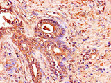 Immunohistochemistry of paraffin-embedded human prostate cancer using ADAM12 Antibody at dilution of 1:100