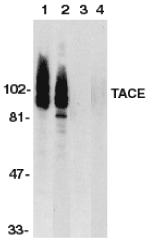 ADAM17 / TACE Antibody - Western blot of TACE in HeLa (1,3) and Jurkat (2,4) whole cell lysate in the absence (1,2) or presence (3,4) of blocking peptide with TACE antibody at 1 ug/ml.