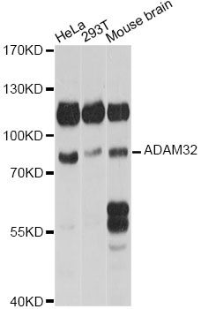 ADAM32 Antibody - Western blot analysis of extracts of various cell lines, using ADAM32 antibody at 1:1000 dilution. The secondary antibody used was an HRP Goat Anti-Rabbit IgG (H+L) at 1:10000 dilution. Lysates were loaded 25ug per lane and 3% nonfat dry milk in TBST was used for blocking. An ECL Kit was used for detection and the exposure time was 30s.