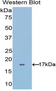 Western blot of recombinant ADAMTS4.  This image was taken for the unconjugated form of this product. Other forms have not been tested.