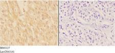ADAMTS7 Antibody - Immunohistochemistry (IHC) analysis of ADAMTS7 antibody in paraffin-embedded human liver carcinoma tissue at 1:50, showing cytoplasm and secreted staining. Negative control (the right) using PBS instead of primary antibody. Secondary antibody is Goat Anti-Rabbit.