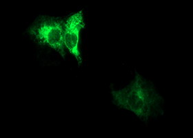 Anti-ADAMTS8 mouse monoclonal antibody immunofluorescent staining of COS7 cells transiently transfected by pCMV6-ENTRY ADAMTS8.