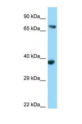 FYB antibody LS-C146173 Western blot of 293T Cell lysate. Antibody concentration 1 ug/ml.  This image was taken for the unconjugated form of this product. Other forms have not been tested.