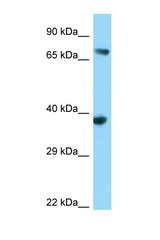 FYB antibody Western blot of 293T Cell lysate. Antibody concentration 1 ug/ml.  This image was taken for the unconjugated form of this product. Other forms have not been tested.