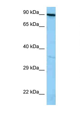 FYB antibody LS-C146374 Western blot of A549 Cell lysate. Antibody concentration 1 ug/ml.  This image was taken for the unconjugated form of this product. Other forms have not been tested.
