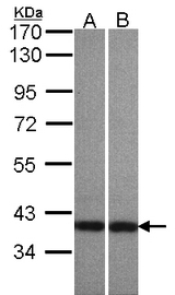 Sample (30 ug of whole cell lysate). A: A431 , B: HeLaS3. 7.5% SDS PAGE. CENTA1 / ADAP1 antibody diluted at 1:500