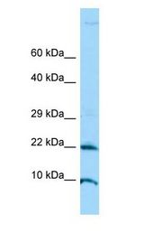 ADAT2 Antibody - ADAT2 antibody Western Blot of Jurkat.  This image was taken for the unconjugated form of this product. Other forms have not been tested.