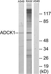 Western blot analysis of lysates from A549 and RAW264.7 cells, using ADCK1 Antibody. The lane on the right is blocked with the synthesized peptide.