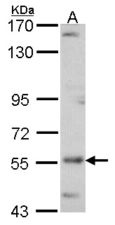 Sample (30 ug of whole cell lysate). A: A431 . 7.5% SDS PAGE. ADCK4 antibody. ADCK4 antibody diluted at 1:500.