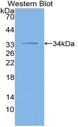Western blot of recombinant ADCY1 / Adenylate Cyclase 1.
