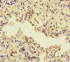 ADCY1 / Adenylate Cyclase 1 Antibody - Immunohistochemistry of paraffin-embedded human lung cancer at dilution of 1:100