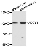 ADCY1 / Adenylate Cyclase 1 Antibody - Western blot analysis of extracts of various cells.