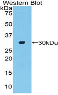 Western blot of recombinant ADCY2 / Adenylate Cyclase 2.  This image was taken for the unconjugated form of this product. Other forms have not been tested.