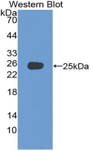 ADCY4 / Adenylate Cyclase 4 Antibody - Western blot of recombinant ADCY4 / Adenylate Cyclase 4.
