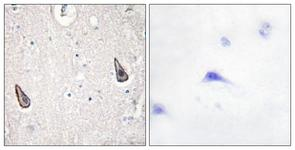 IHC of paraffin-embedded human brain tissue, using ADCY5/6 Antibody. The picture on the right is treated with the synthesized peptide.
