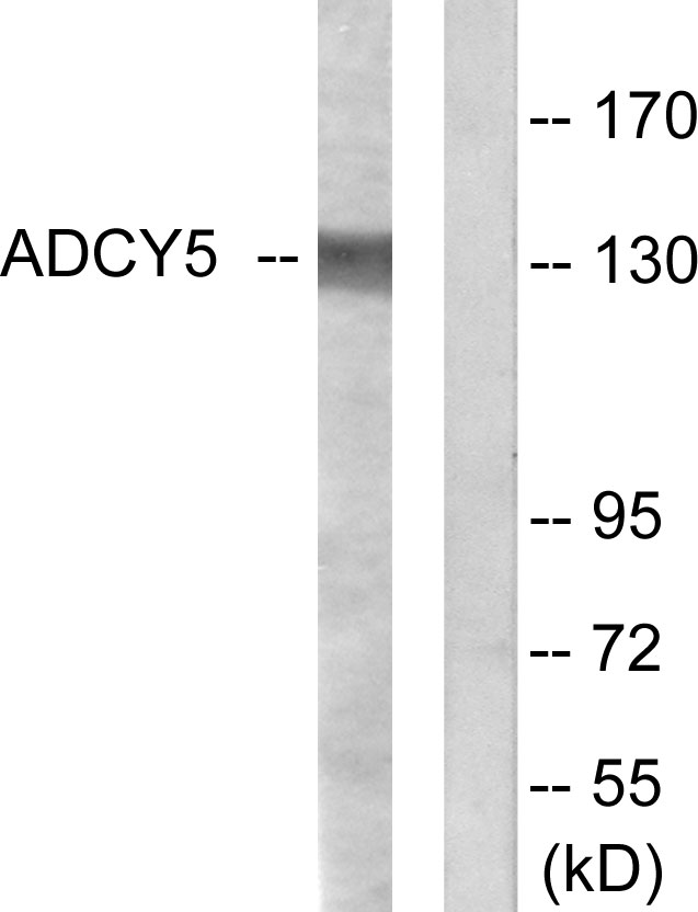 ADCY5+6 Antibody - Western blot analysis of lysates from COLO205 cells, using ADCY5/6 Antibody. The lane on the right is blocked with the synthesized peptide.