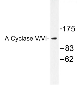 ADCY5+6 Antibody - Western blot of A Cyclase V/VI (F1052) pAb in extracts from COLO205 cells.