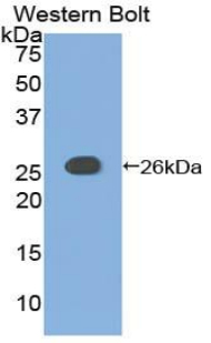 Western blot of recombinant ADCY6 / Adenylate Cyclase 6.