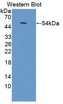 Western blot of ADCY9 / Adenylate Cyclase 9 antibody.