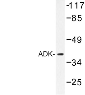 Adenylate Kinase Antibody - Western blot of ADK (E6) pAb in extracts from RAW264.7 cells.