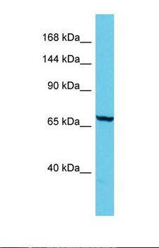 ADGB Antibody - Western blot of Human Jurkat. ADGB antibody dilution 1.0 ug/ml.  This image was taken for the unconjugated form of this product. Other forms have not been tested.