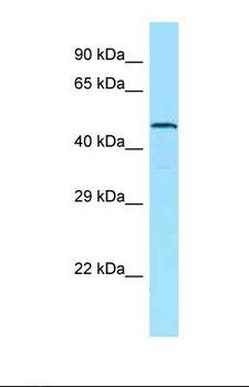 ADGRA1 / GPR123 Antibody - Western blot of Human PANC1. GPR123 antibody dilution 1.0 ug/ml.  This image was taken for the unconjugated form of this product. Other forms have not been tested.
