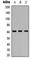 ADGRA1 / GPR123 Antibody - Western blot analysis of GPR123 expression in HeLa (A); Raw264.7 (B); PC12 (C) whole cell lysates.