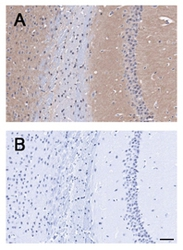 Immunohistochemistry-Paraffin: BAI1 Antibody - A. Staining of mouse brain. B. Blocking of staining using control peptide.  This image was taken for the unconjugated form of this product. Other forms have not been tested.